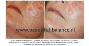 natuurlijke-huidverjonging-voor-en-na