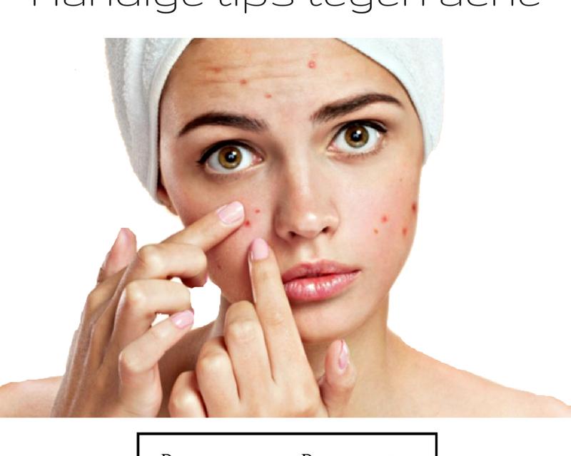 Handige tips tegen acne
