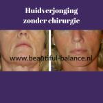 Huidverjonging zonder chirurgie