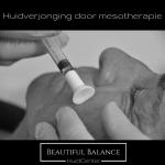 Huidverjonging door mesotherapie
