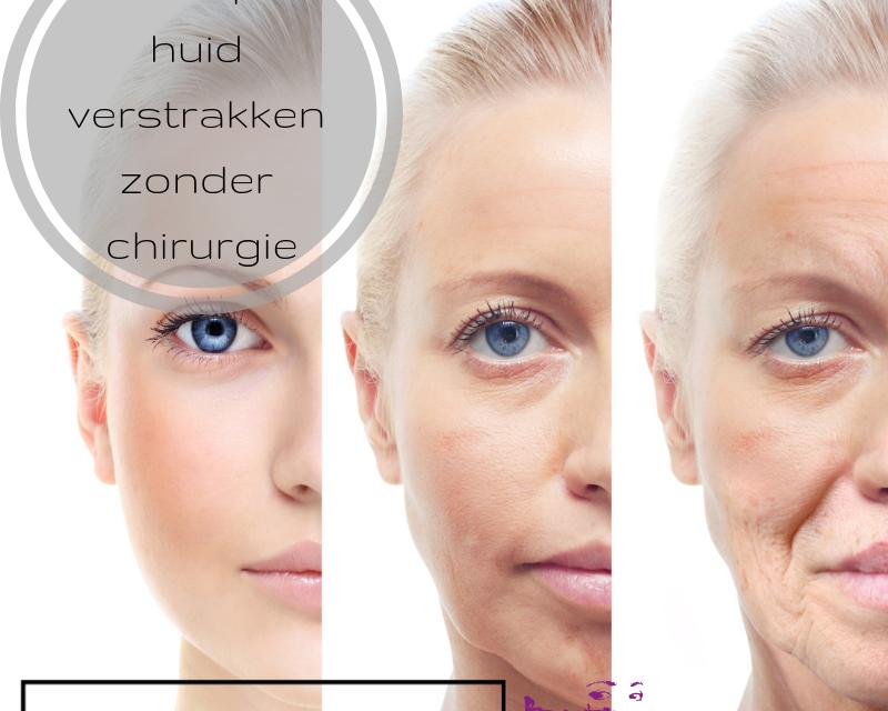 verslapte huid verstrakken zonder chirurgie