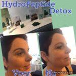 Hoe detox ik mijn huid