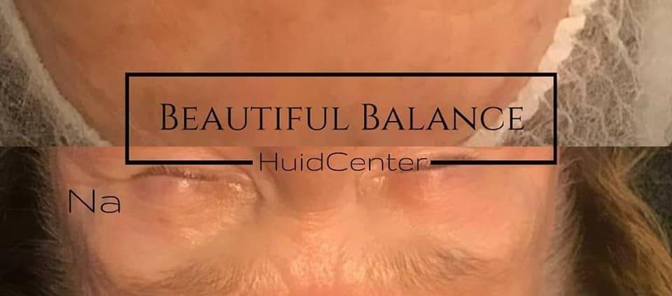 rimpels behandelen zonder botox