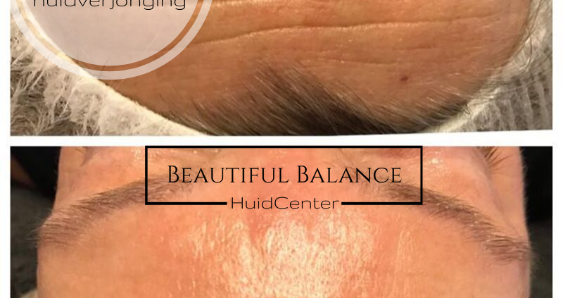 Wat is natuurlijke huidverjonging