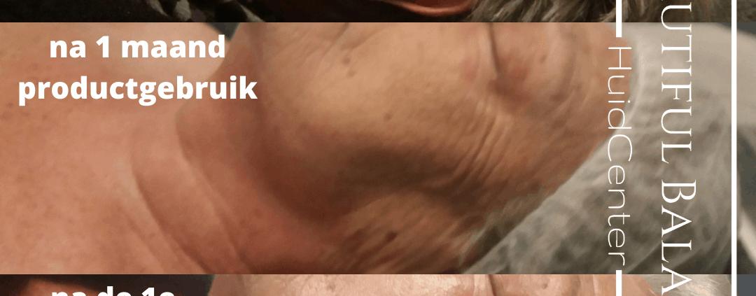 Hoe snel zie je huidverbetering