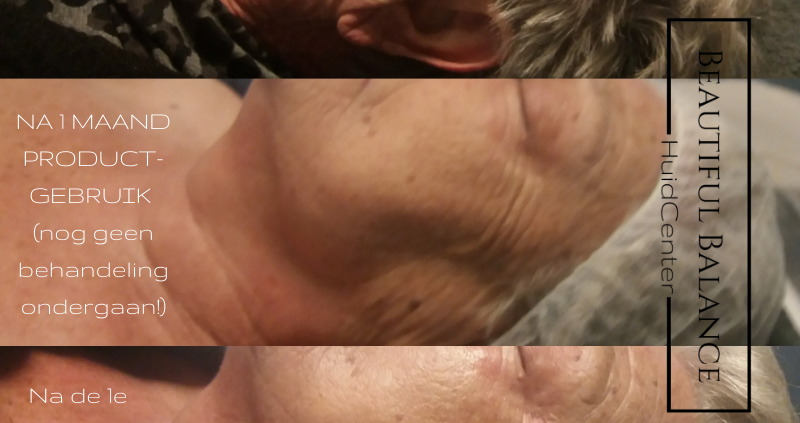 Ultieme huidverzorgingstips